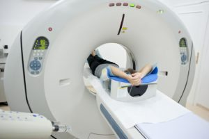 PET CT is useful for pre-operative staging for cervical cancer